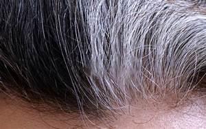 Premature Greying White Hair Treatment In Delhi India