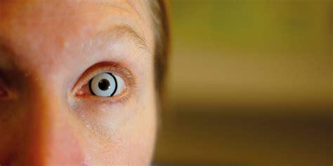 prosthetic contact lenses for light sensitivity cosmetic lenses burnett hodd tam optometry
