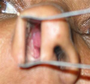 Squamous Cell Carcinoma Inside Nose Pictures to Pin on ...