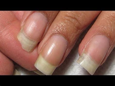 fix  broken corner diy nail repairtutorial youtube