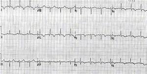 Myocarditis Electrocardiogram