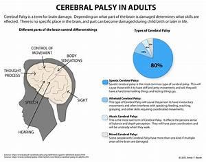 cerebral palsy AND Brain - Google Search | Cerebral Palsy ...