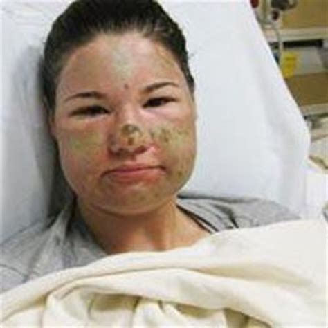 Cosmetic Surgeries Complications Side Effects Risks. Mcafee Iphone Security Plumbers Morristown Nj. Internet Marketing Pay Per Click. Successful Internet Marketer. Easy Debt Consolidation Loan. Best Restaurants Huntington Beach. Cell Phone Contract Or No Contract. Beauty Schools Sacramento Instant Web Hosting. What Is My Nursing License Number