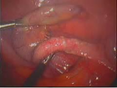 Appendicitis Swelling
