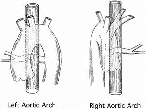 Prevalence and Anatomy of Retroesophageal Major ...