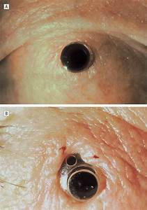 Data Examples Endophthalmitis After Keratoprosthesis Incidence