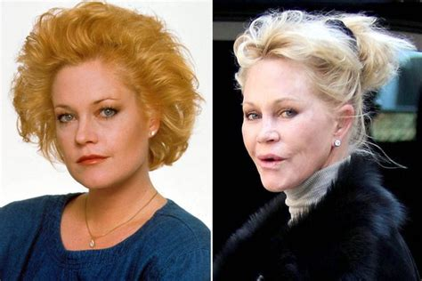 What's happened to Melanie Griffith's face? Star looks ...