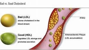 ... Cholesterol, HDL, Hypercholesterolemia, Hyperlipidemia Cholesterol