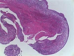 Histology Of The Inflammatory Radicular Cyst  Hematoxylin
