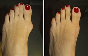 home remedies for hammer toe pain
