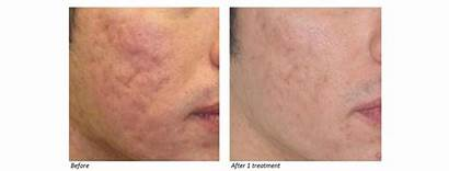 Laser Dot Co2 Scars Acne Fractional Therapy