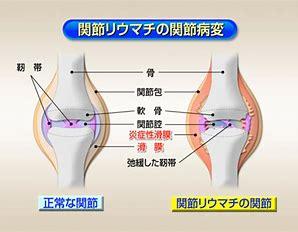 関節リウマチ に対する画像結果