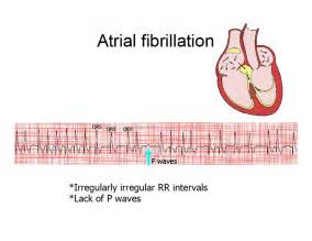 Atrial fibrillation/flutter as related to Angina - Pictures