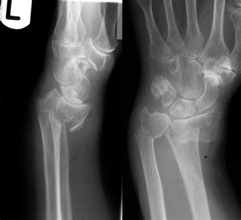 fracture colles radius distal smith vs fractures angulation fx smiths lateral volar xr core ap litfl em