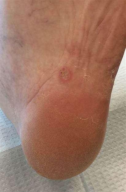 Foot Athlete Infection Athletes Fungal Skin Arch