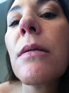 Lupus Skin Rash On Chin