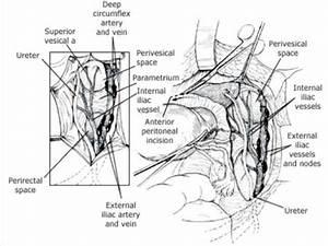 Uterosacral Ligament Ligation Related Keywords ...