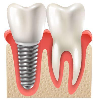 Hair Implants Lincoln Ne 68526 Dental Procedures Dental Implants Nebraska