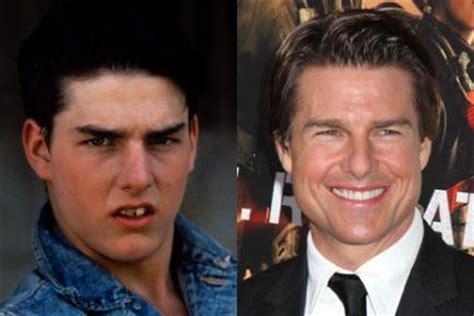 celebrity teeth    smile makeovers bt