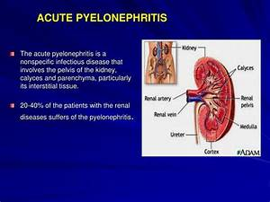 Ppt - Acute Pyelonephritis Powerpoint Presentation