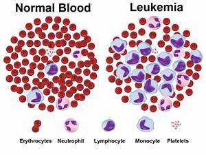 Chronic Lymphocytic Leukemia (CLL) - Dr. Farrah Cancer Center  Menopause Chronic lymphocytic leukemia (CLL)