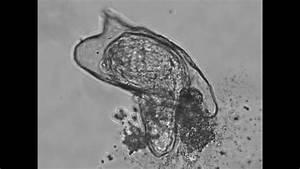 Hatching Of A Schistosoma Mansoni Miracidium