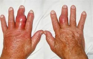 Diagram Of Gout