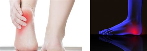 awesome easy remedies for plantar fasciitis pequot runners plantar fasciitis a runner s manual on causes treatment