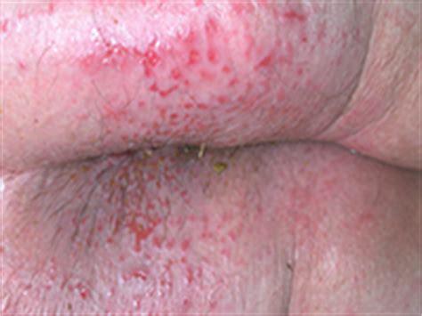 dermites du siège groupe plaies et cicatrisation à