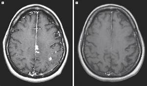 Aggressive Therapy For Neurosarcoidosis