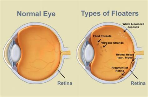 seeing flashes of light an eye floaters cure that works