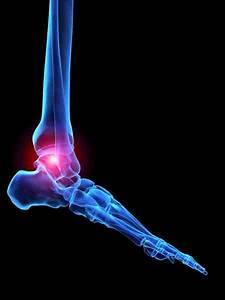 Arthritis Achilles Tendon Treatment Care Foundation