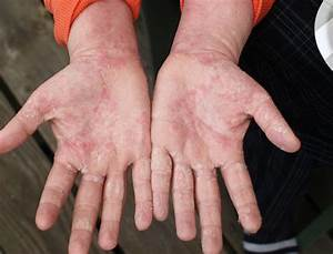 Can Skin Become Addicted To Topical Steroids