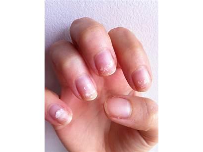 Nails Acrylic Remove Shellac Damage Nail Painlessly