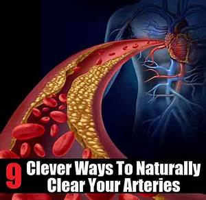 9 Clever Ways To Naturally Clear Arteries - Lil Moo Creations