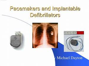 PPT - Pacemakers and Implantable Defibrillators PowerPoint ...
