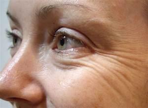 Косметологические процедуры от мимических морщин
