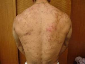 inyectarse esteroides efectos