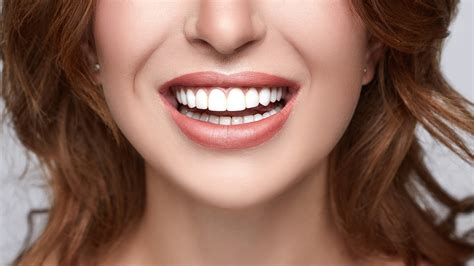 Brighten Your Smile with Diamond Teeth Whitening in Nerang | Scoopon