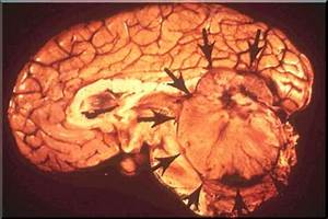 Dr. Arun L.Naik - Medulloblastoma