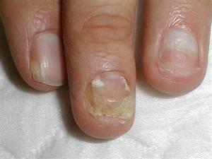 Грибок ногтей как выглядит 1 стадии