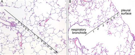 Radial Alveolar Count. Alveolar Histology Of A