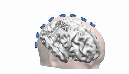 Biomedical Engineering Research Functional Brain Cmu Imaging