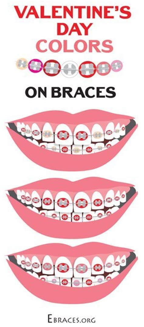 valentines day colors you don t to be a genius to choose braces colors