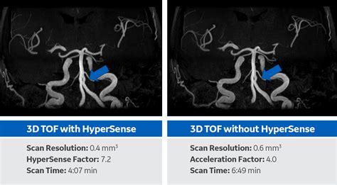improve quality  reduce scan time  hypersense