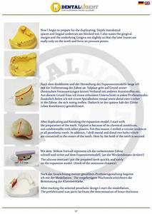 Valplast Prothese Abrechnung : news dentalligent blog page 28 ~ Themetempest.com Abrechnung