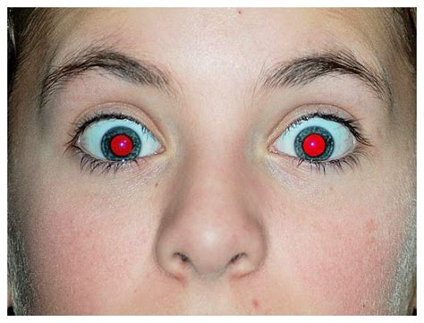 What Causes Red Eye In Photographs? » Science Abc