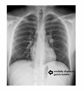 Imaging Case of the Week 260 Answer | Emergucate