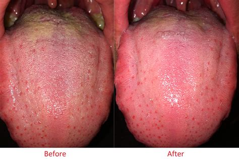 Coconut Oil Killed Tongue Thrush In Hours Diet