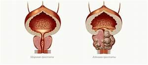 Лечение аденомы простаты асд фракция 2